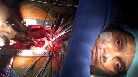 """Awake Cardiac Surgery on a patient with """"Bombay Blood"""